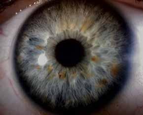 Sample Left Iris
